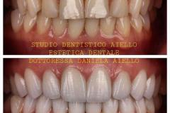 studio-dentistico-aiello-dentista-estetico-salerno-dottoressa-daniela-aiello-1-instagram