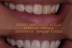 studio-dentistico-aiello-dentista-estetico-salerno-dottoressa-daniela-aiello-2-instagram