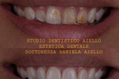 studio-dentistico-aiello-dentista-estetico-salerno-dottoressa-daniela-aiello-3-instagram-pontecagnano-dentista