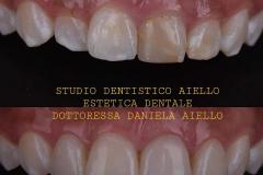 studio-dentistico-aiello-dentista-estetico-salerno-dottoressa-daniela-aiello-4-instagram-pontecagnano-dentista