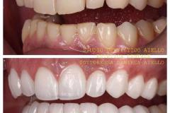 studio-dentistico-aiello-dentista-estetico-salerno-dottoressa-daniela-aiello-5-instagram-pontecagnano-dentista