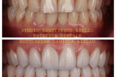 studio-dentistico-aiello-dentista-estetico-salerno-dottoressa-daniela-aiello-6-instagram-pontecagnano-dentista