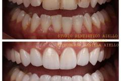 studio-dentistico-aiello-dentista-estetico-salerno-dottoressa-daniela-aiello-7-instagram-pontecagnano-dentista