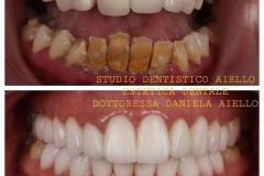 studio-dentistico-aiello-dentista-estetico-salerno-dottoressa-daniela-aiello-8-instagram-pontecagnano-dentista