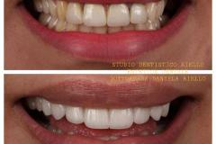 studio-dentistico-aiello-dentista-estetico-salerno-dottoressa-daniela-aiello-9-instagram-pontecagnano-dentista