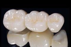 Perfect_Smile_Dental_PROTESI-FISSA-STUDIO-DENTISTICO-AIELLO-DOTORESSA-DANIELA-AIELLO