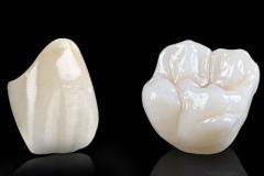 STUDIO-DENTISTICO-AIELLO-Perfect_Smile_Dental_Ceramics_Perfect_Solid_Zirconia-