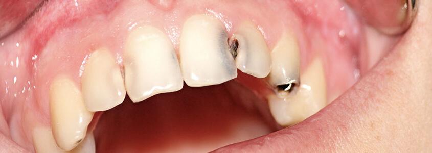 studio-dentistico-aiello- combattere-la-carie