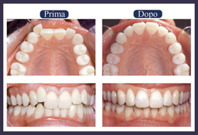 Ortodonzia invisibile a salerno pontecagnano -studio dentistico aiello