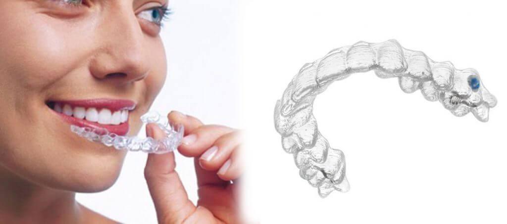 Ortodonzia invisibile a salerno pontecagnano -studio dentistico aiello- dottoressa daniela aiello