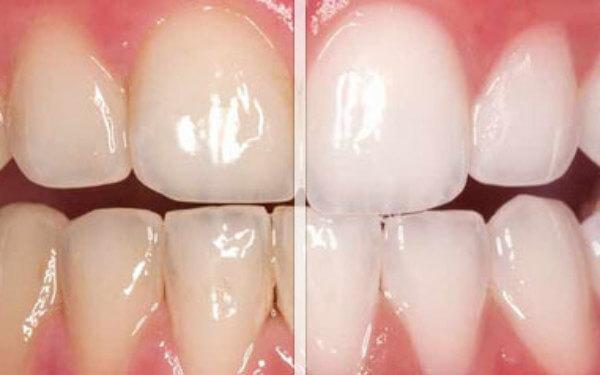 studio aiello sbiancamento dentale