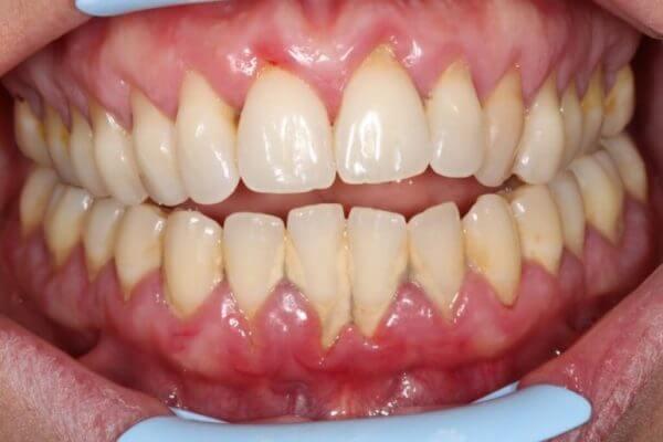 studio-dentistico-aiello-dottoressa-daniela-aiello-Parodontite