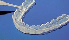 studio-dentistico-aiello-dottoressa-daniela-aiello-SBIANCAMENTO-DENTALE-con-mascherina