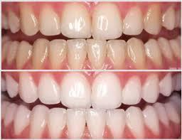 studio-dentistico-aiello-dottoressa-daniela-aiello-Sbiancamento-dentale-professionale-foto-10