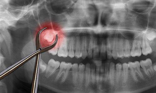 studio-dentistico-aiello-dottoressa-daniela-aiello-denti-giudizio-sapevi-che