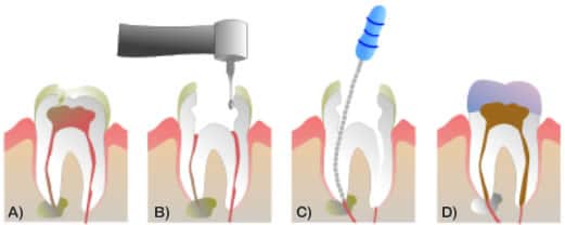 La devitalizzazione dentale - endodonzia 1