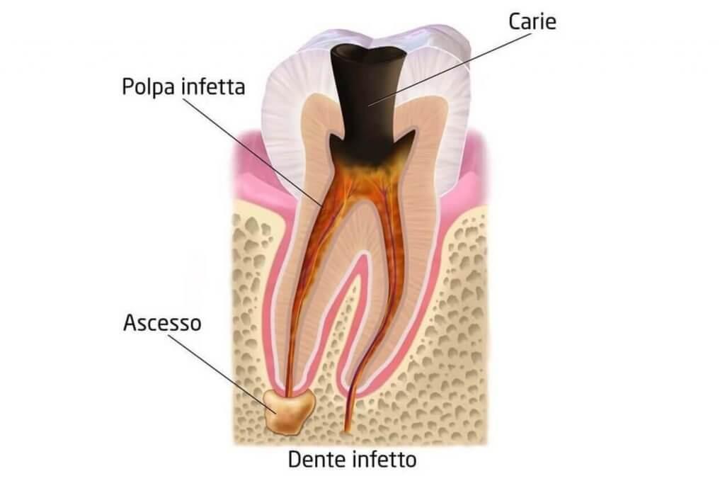studio-dentistico-aiello-dottoressa-daniela-aiello-devitalizzazione dentale endodonzia