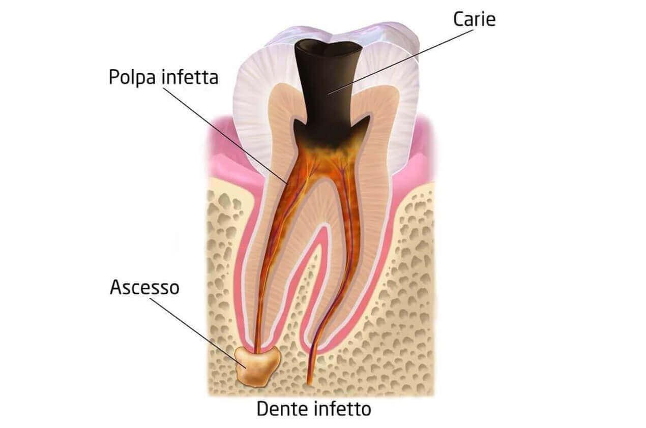 studio-dentistico-aiello-dottoressa-daniela-aiello-devitalizzazione endodonzia