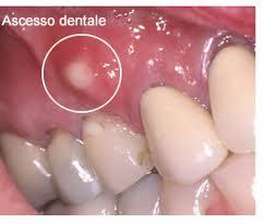 Studio Aiello ascesso dentale 1