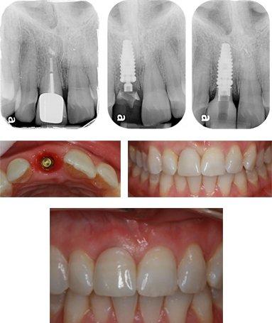 impianto-dentale-studio_dentistico-aiello