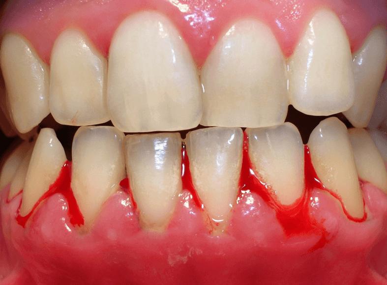 consigli per salvare i denti Igiene dentale  Parodontologia