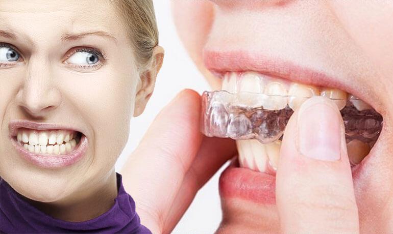 bruxismo-digrignare-denti-rimedi-cause-sintomi-conseguenze-min