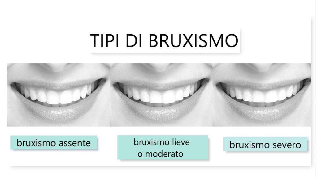 bruxismo sintomi -studio-dentistico-aiello-dottoressa-daniela-aiello-1