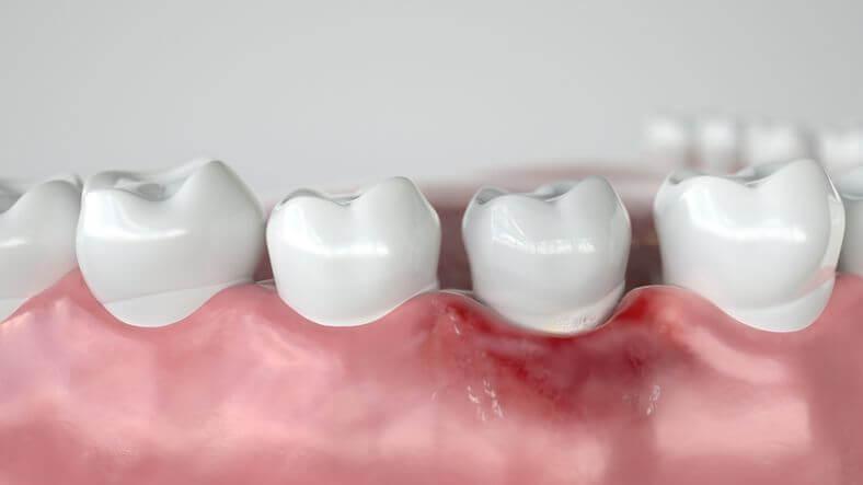 cos'è la Parodontologia e come si cura la parodontite 1
