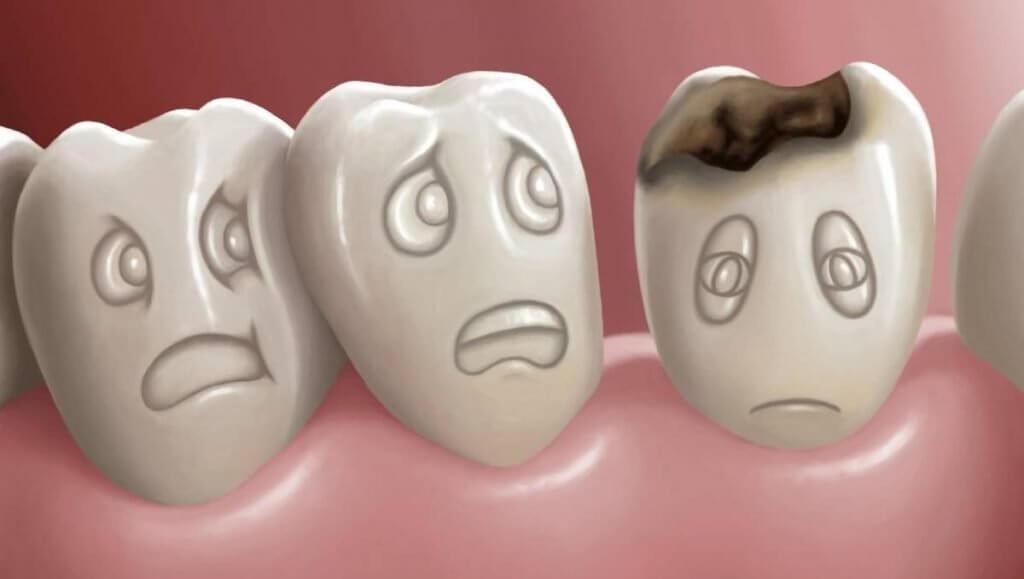 Carie-dentale-studio-dentistico-aiello