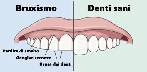 bruxismo sintomi-studio-dentistico-aiello