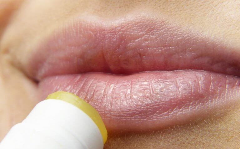 herpes-labiale-IDRATARE-LA-PELLE-studio-dentistico-aiello