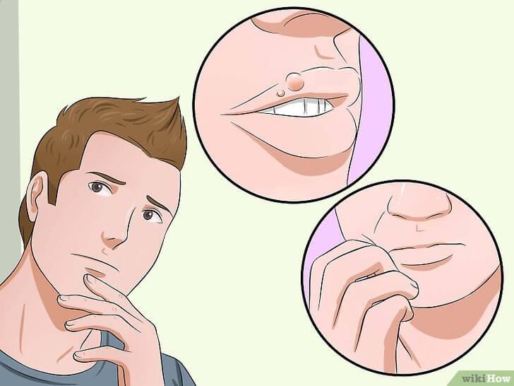 herpes-orale-NON-PASSARLO-A-SÉ-STESSI-studio-dentistico-aiello