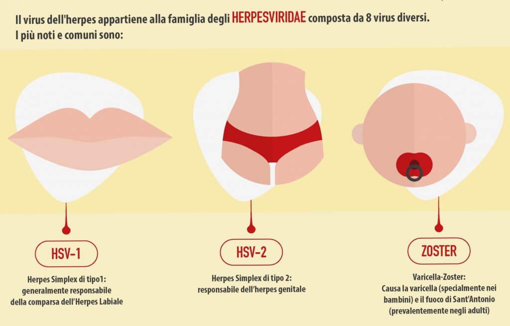 HERPES ORALE SINTOMI E CURA 1