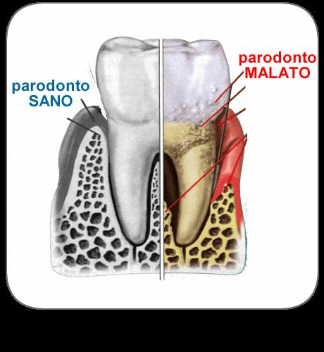 la Parodontologia