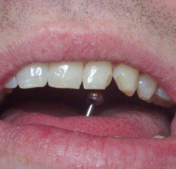 piercing alla lingua Rischi per la salute orale di 7