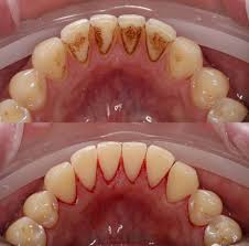 Cos'è La Parodontite Quali fattori favoriscono la parodontite? Vediamo un elenco dei fattori che favoriscono la parodontite: 3